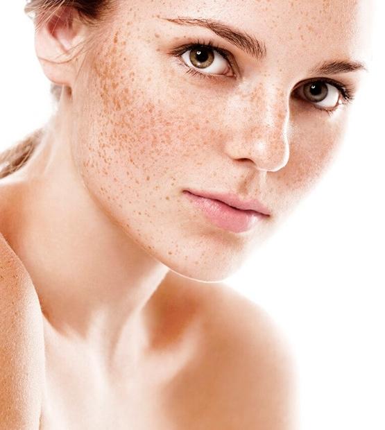 depilacja laserowa twarzy wrocław kandara